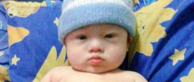Bebé nacido por subrogación abandonado por tener Síndrome de Down