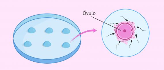 Óvulo fecundado