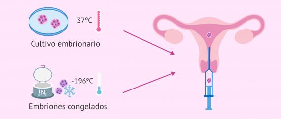 Transferencia de embriones en fresco o congelados