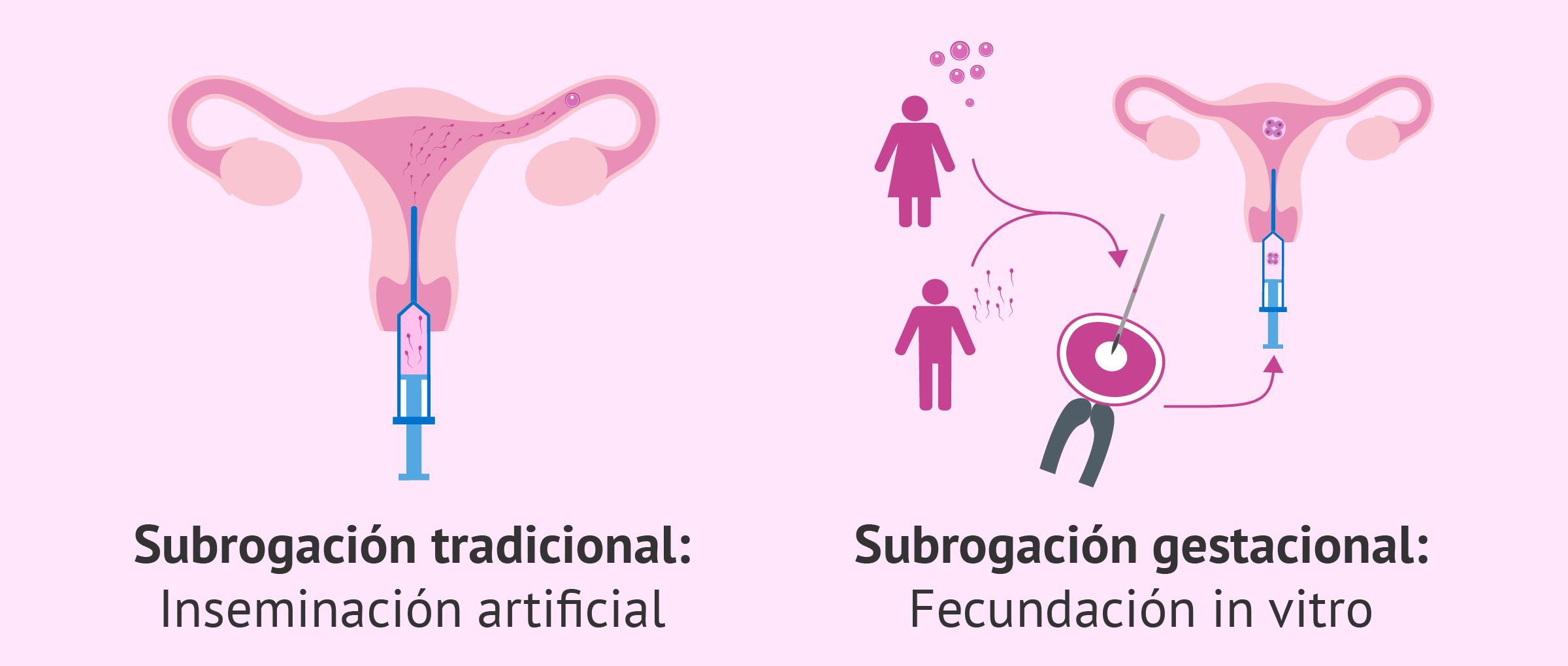 Gestación subrogada tradicional vs gestacional