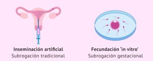 Técnicas de reproducción asistida en maternidad subrogada