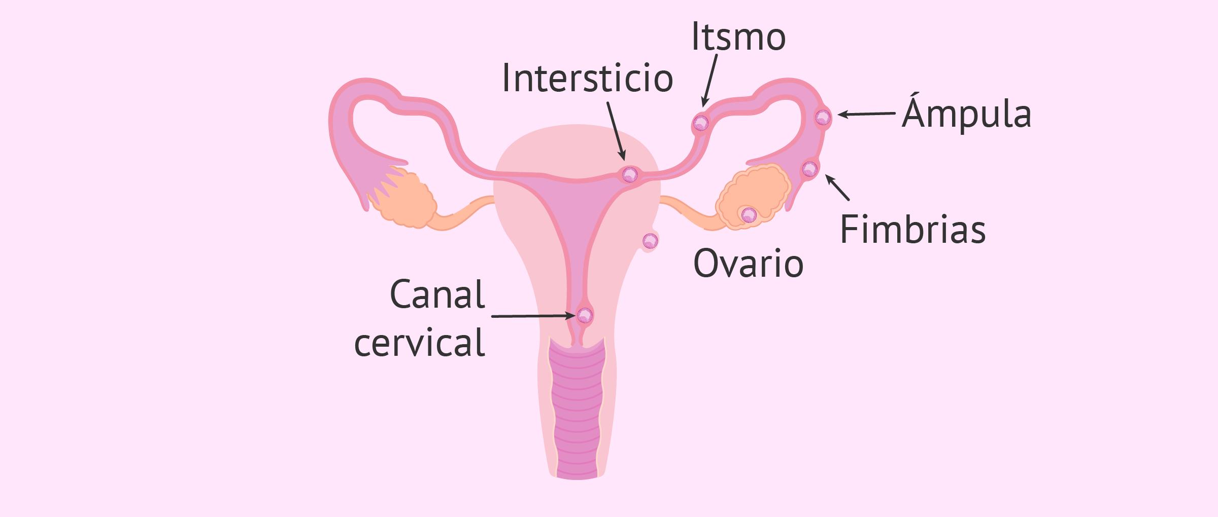 Lugares de implantación del embrión en un embarazo ectópico