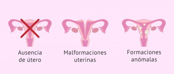 Incapacidad de gestar por enfermedades que afectan al útero