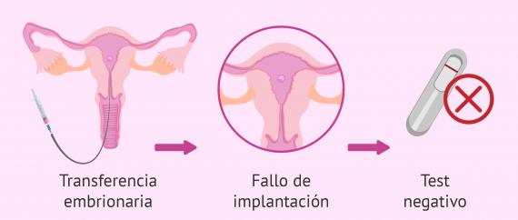 Fallos repetidos de implantación después de FIV
