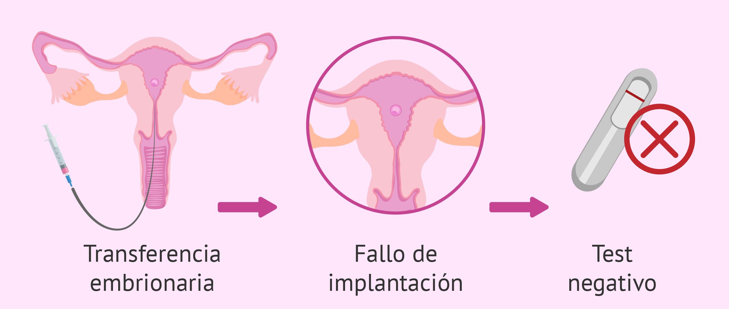 Fallo de implantación embrionaria: causas, síntomas y soluciones