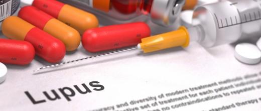 Fármacos para el lupus