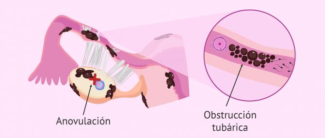 Dificultad implantatoria
