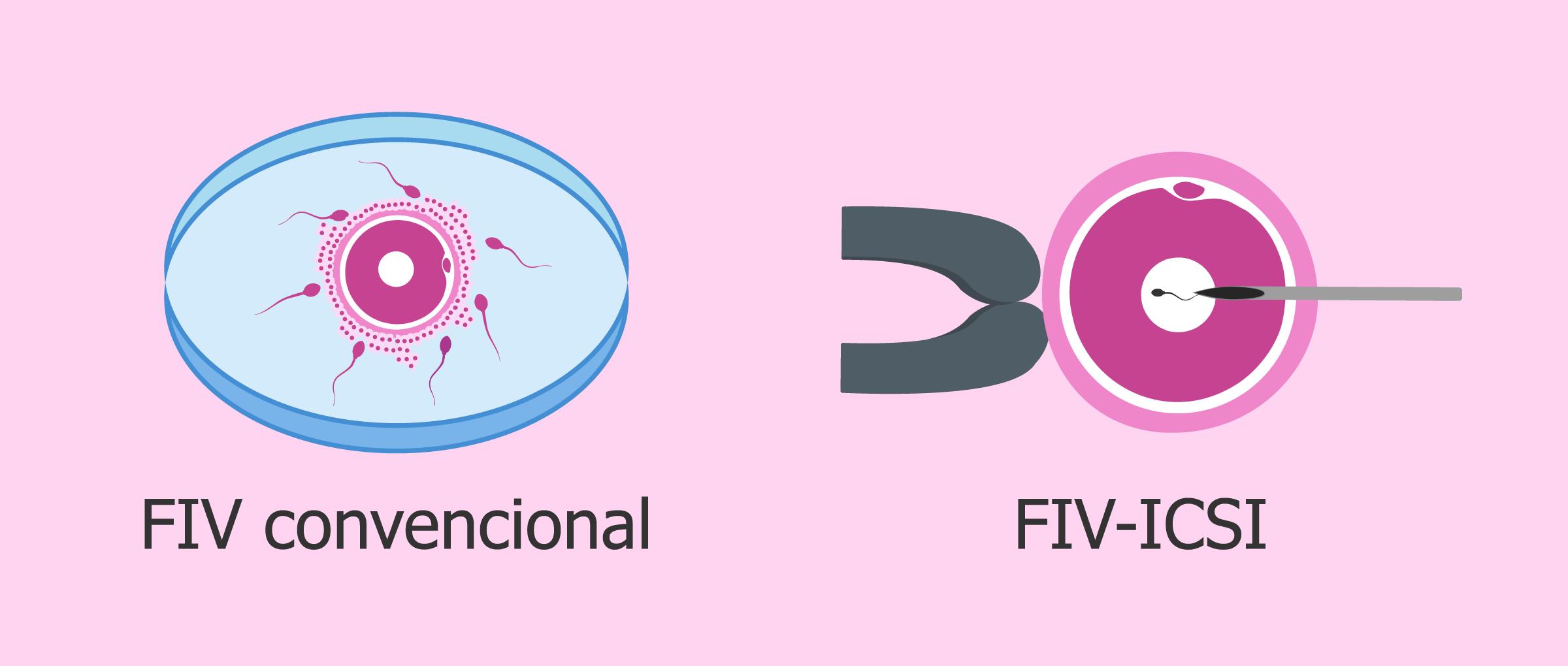 ¿Cuál es la diferencia entre la FIV convencional y la ICSI?