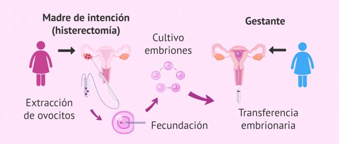 fecundación in vitro con óvulos propios
