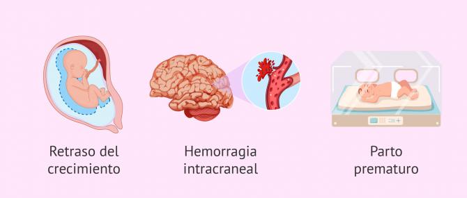 Complicaciones en el embarazo en mujeres con cardiopatías