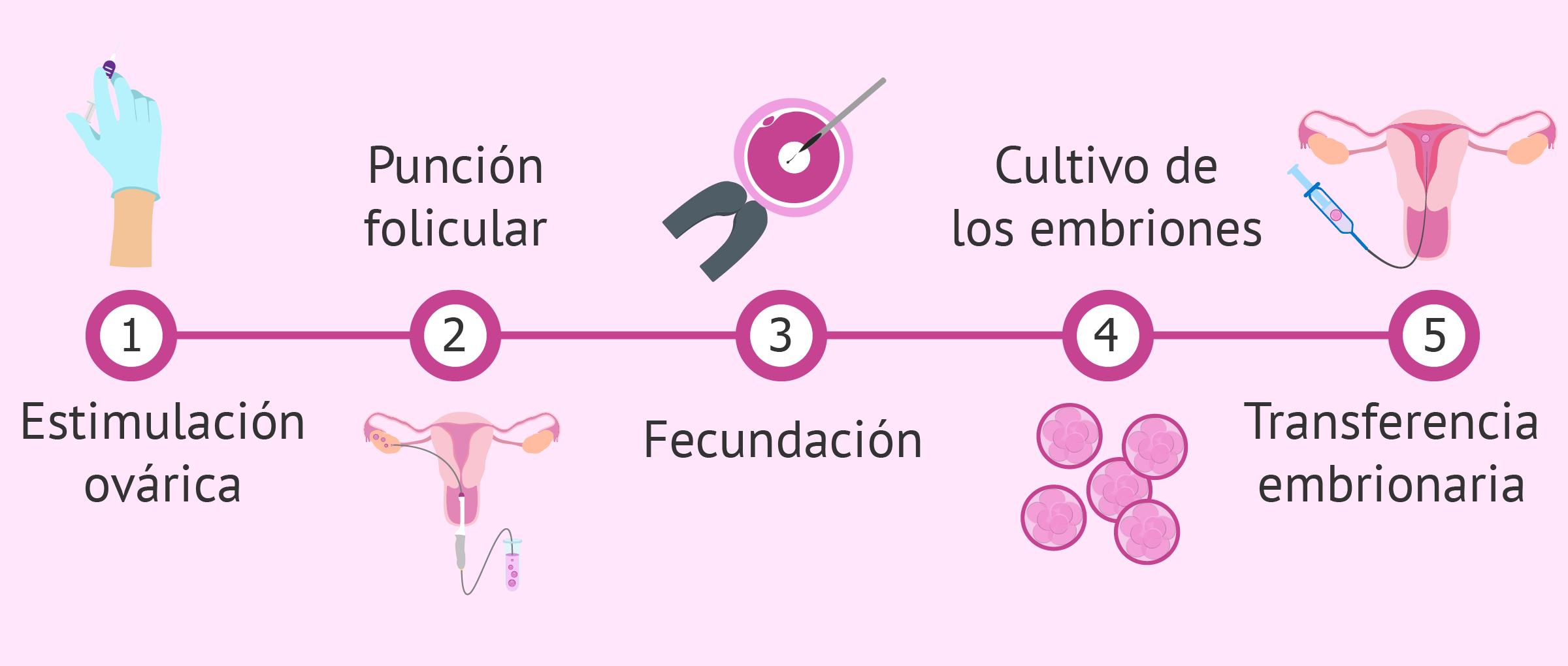 Pasos del tratamiento de fecundación in vitro (FIV)