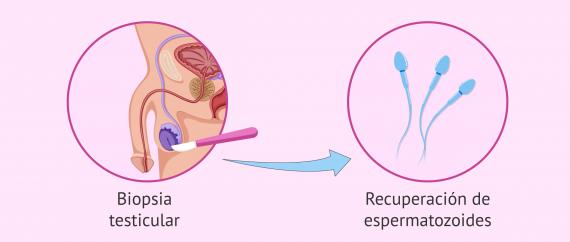 Biopsia de testículo para comprobar la producción de espermatozoides
