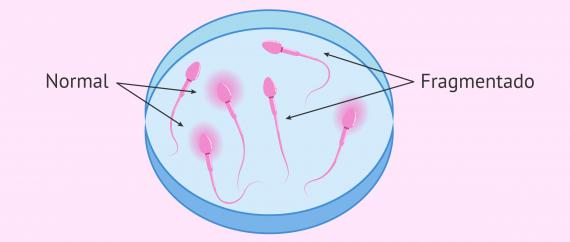 Fragmentación del ADN de los espermatozoides