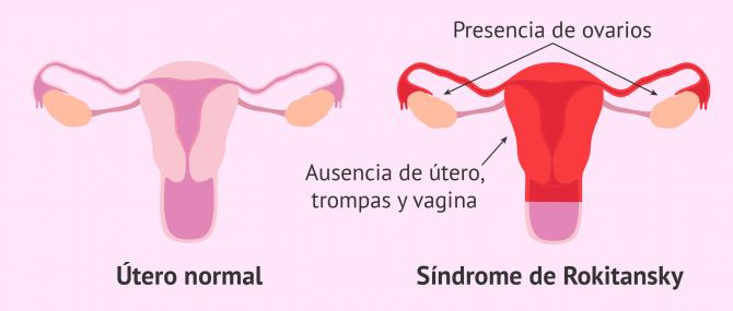 Agenesia o aplasia mulleriana