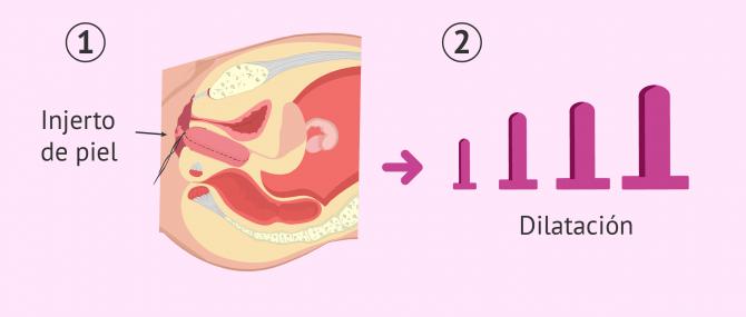 Intervención quirúrgica para formar una vagina