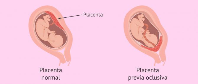 Placenta normal vs. placenta previa oclusiva