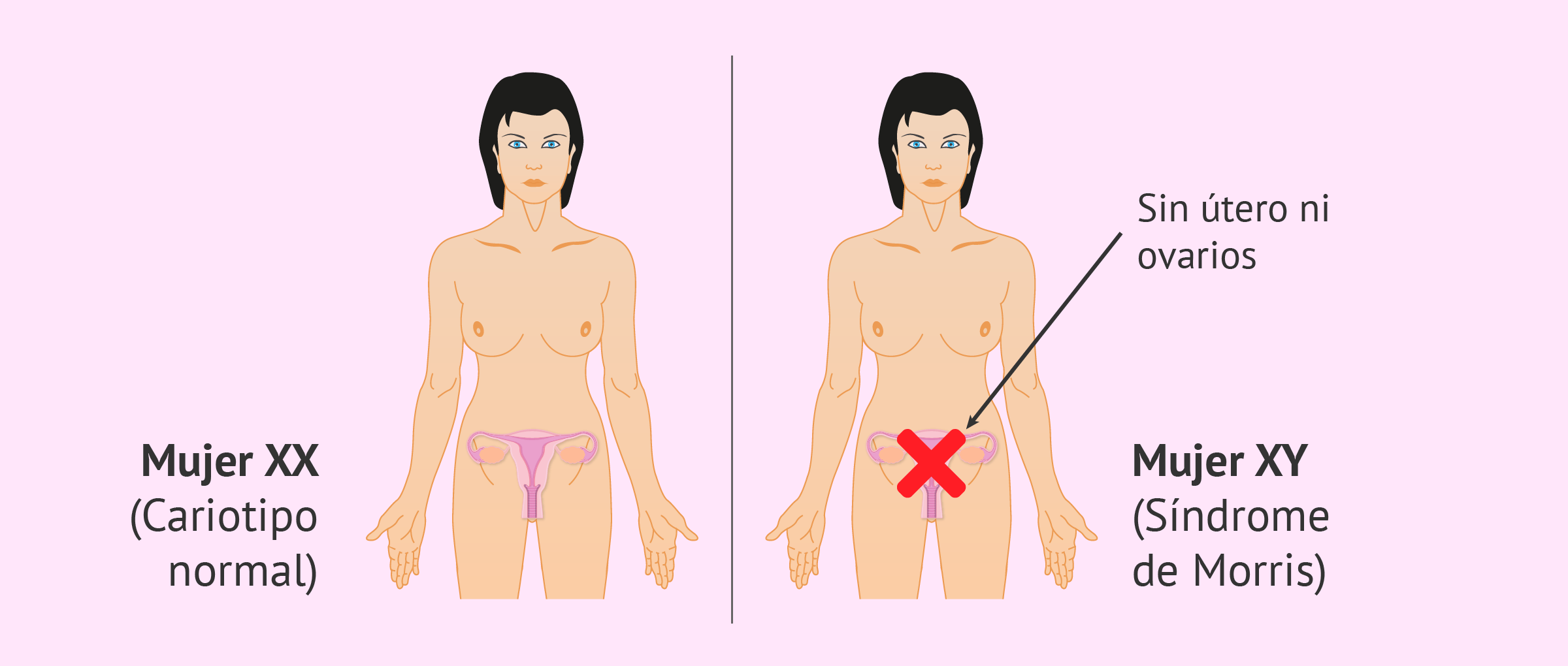 Síndrome de Morris: características, causas y opciones reproductivas