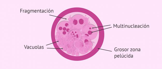 Imagen: Criterios morfológicos de clasificación embrionaria